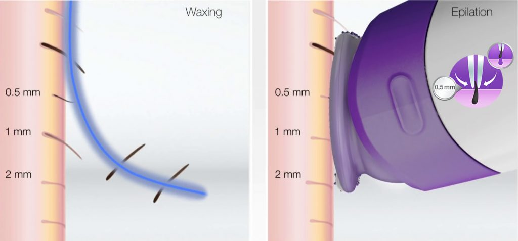 braun silk-epil-9-microgrip-technology qa