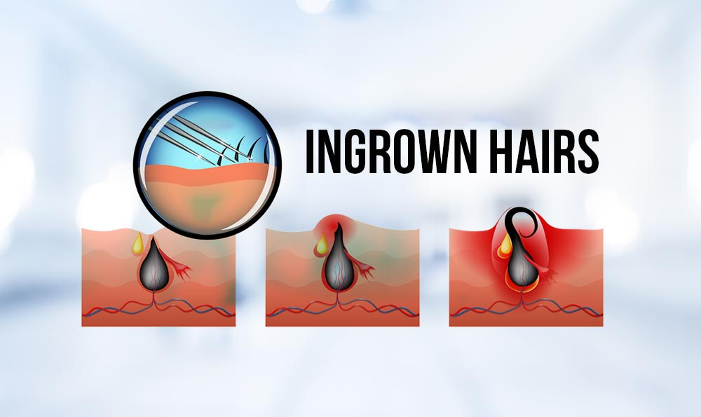 how to get rid of ingrown hair explained in simple steps