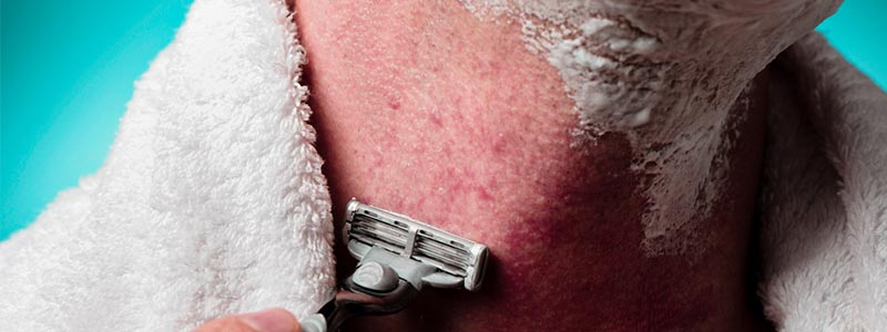 How To Get Rid Of Razor Bumps On Your Neck