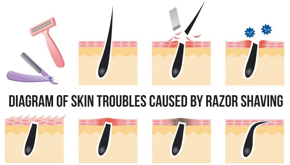 Razor Bumps Causesv