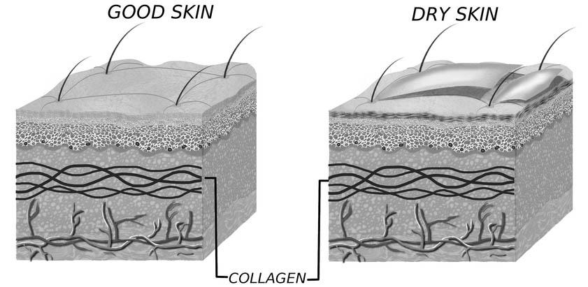 Dry Skin explanation