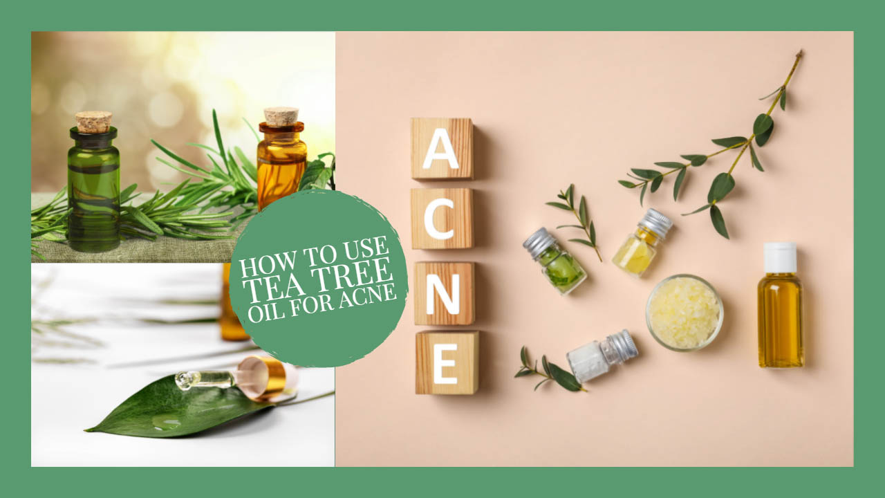 Use OF Tea Tree Oil for Acne