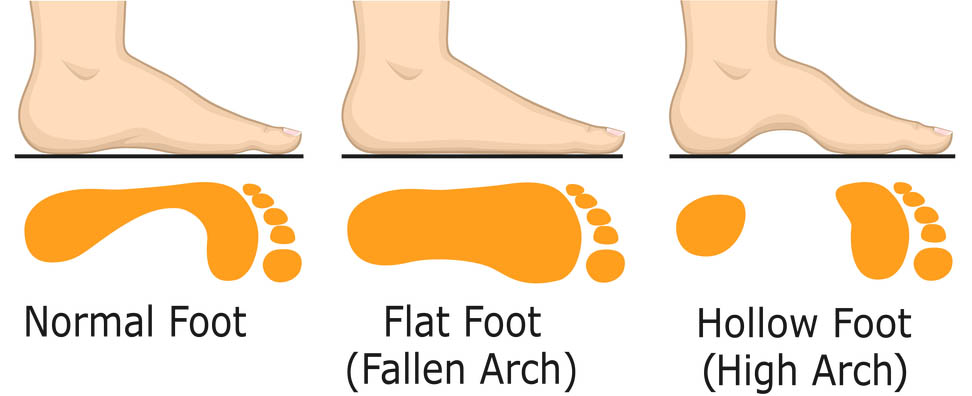 arch types of the feet