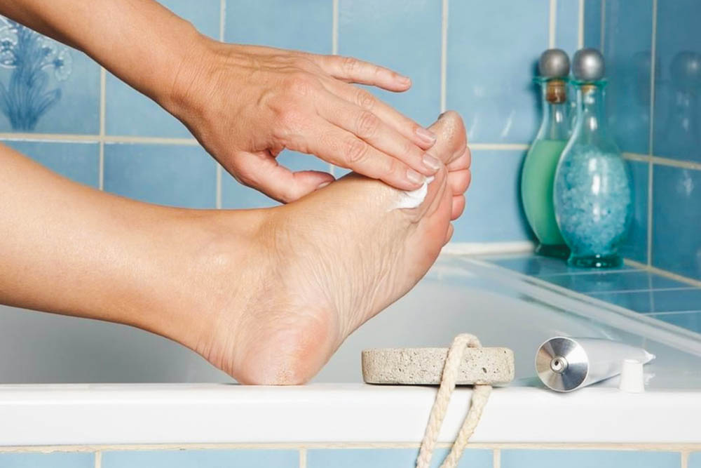 applying lactic acid to remove calluses