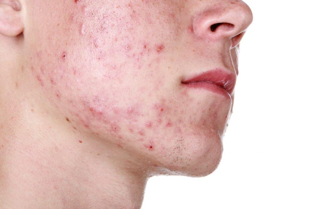 Use Accutane for Severe Acne